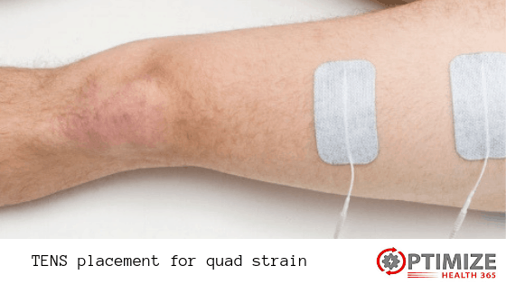 TENS placement for quad strain