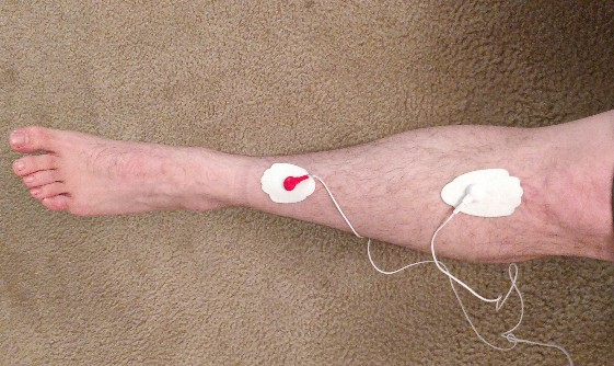 TENS unit for shin splints