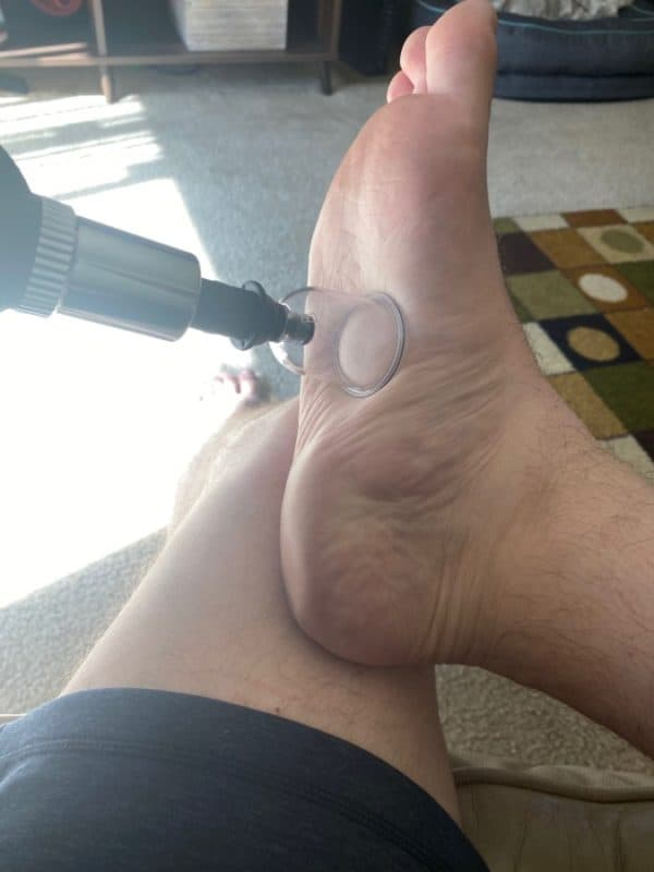cupping placement plantar fasciitis