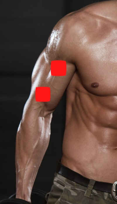 tens unit placement for biceps tendonitis