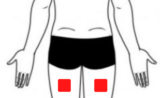 TENS placement for Restless leg syndrome